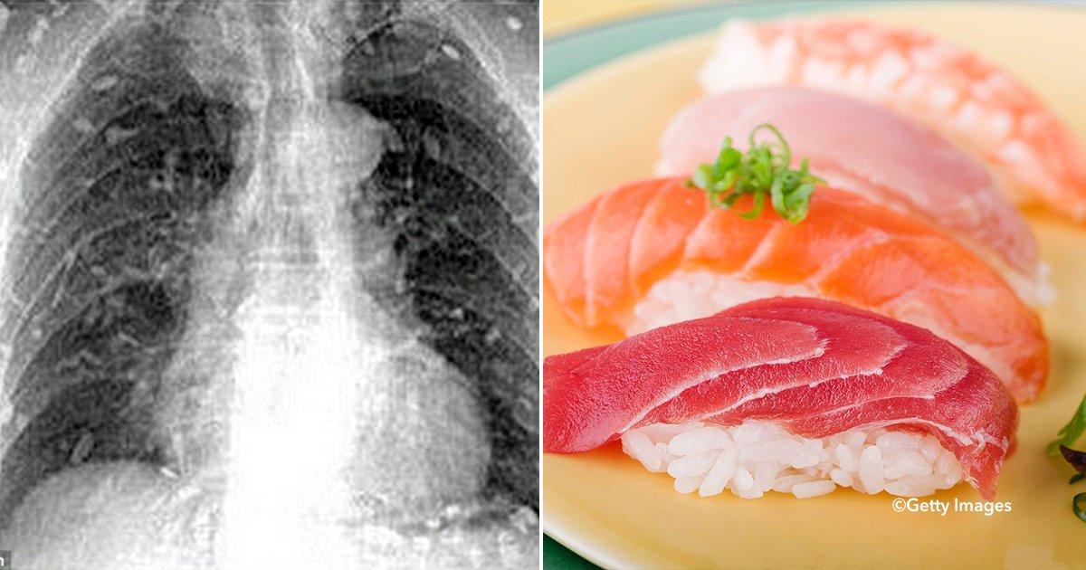 cove99 - Una radiografía revela que el interior de un hombre está lleno de gusanos. El culpable es algo que muchos comen