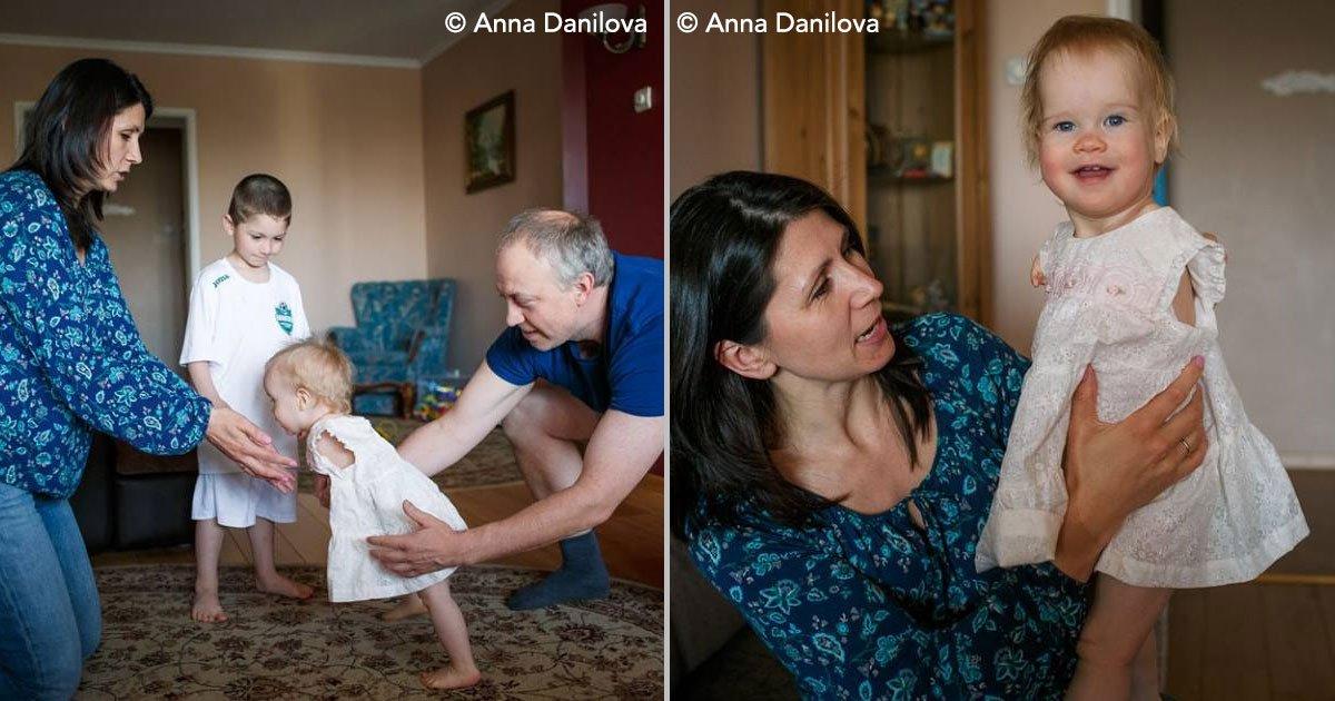 cover 113.jpg?resize=412,232 - Bebê deixada em orfanato pelos pais por conta de deformidade, é adotada por casal de estrangeiros