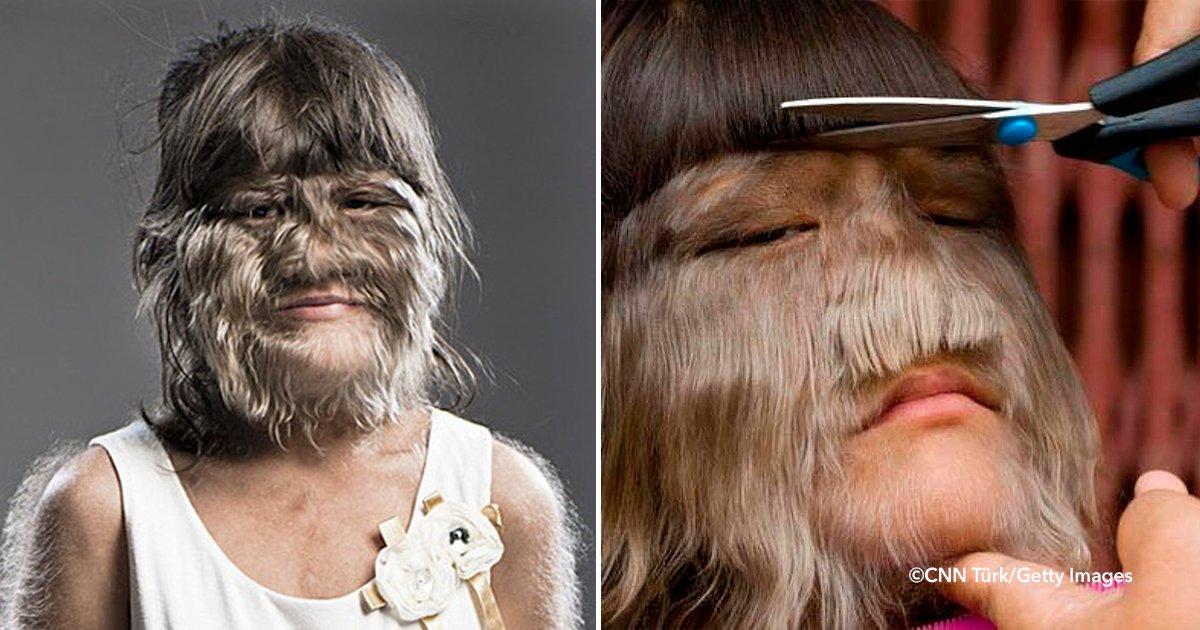 cover 4 1.png?resize=300,169 - Esta chica tailandesa es considerada la mujer más peluda del mundo y decidió afeitarse para su casamiento