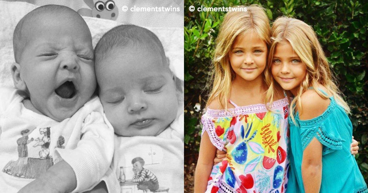 """cover 53.jpg?resize=412,232 - """"As gêmeas mais belas do mundo"""" estão enlouquecendo as redes sociais"""