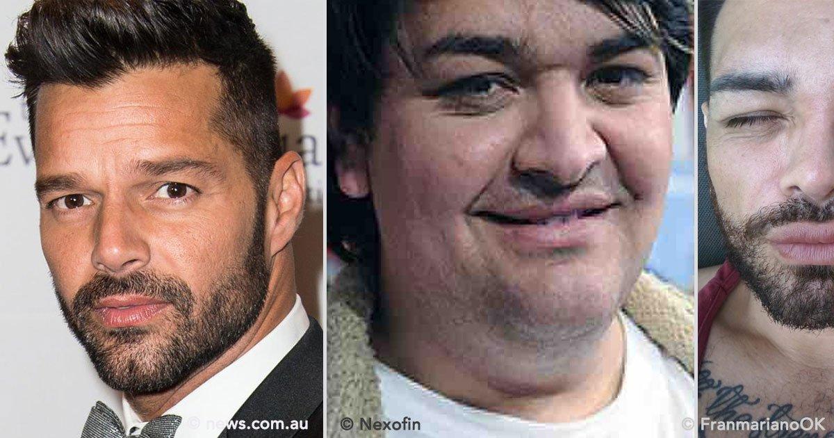 cover 72 - Hombre se opera 9 veces para parecerse a Ricky Martin. ¡El resultado es impresionante!