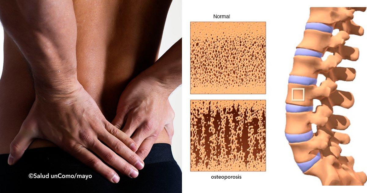 """cover2.jpg?resize=1200,630 - """"La enfermedad silenciosa"""" consejos maravillosos para evitar la osteoporosis"""