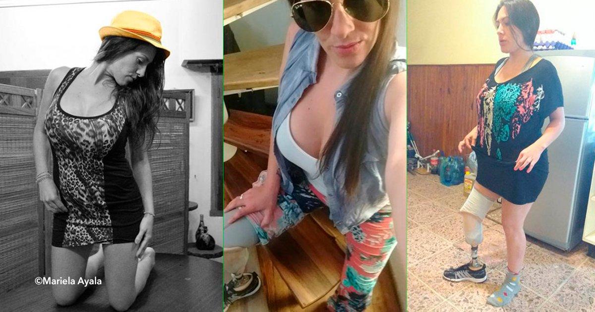 """cover22.png?resize=300,169 - Esta mujer se sometió a una """"liposucción barata"""" y perdió una pierna, ahora pide justicia"""