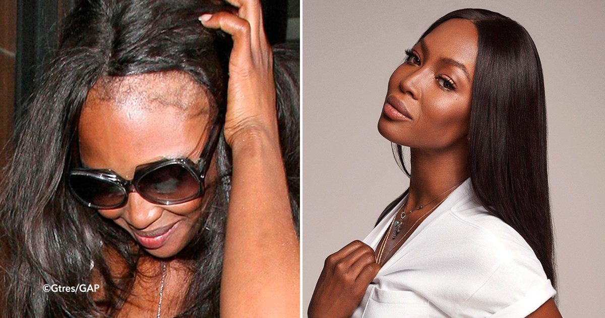cover45.jpg?resize=1200,630 - 10 celebridades que usan pelucas, algunos de ellos han perdido su cabello totalmente.