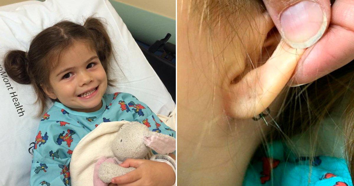 cover7.jpg?resize=300,169 - Una madre nota que el pendiente de su hija de 3 años se cayó y cuando intenta quitar el resto, tienen que correr al hospital.