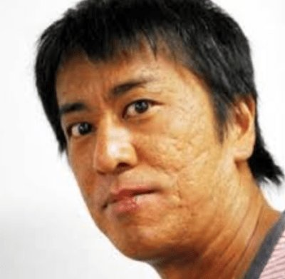 ブラマヨ吉田 肌에 대한 이미지 검색결과