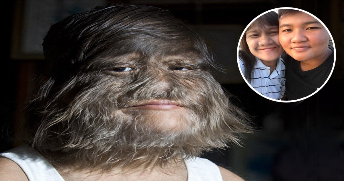 ec8db8eb84ac2 10.jpg?resize=300,169 - 'World's Hairiest Girl' Unveils Her Beautiful Look After She Begins Shaving Her Face And Marries The 'Love Of Her Life'