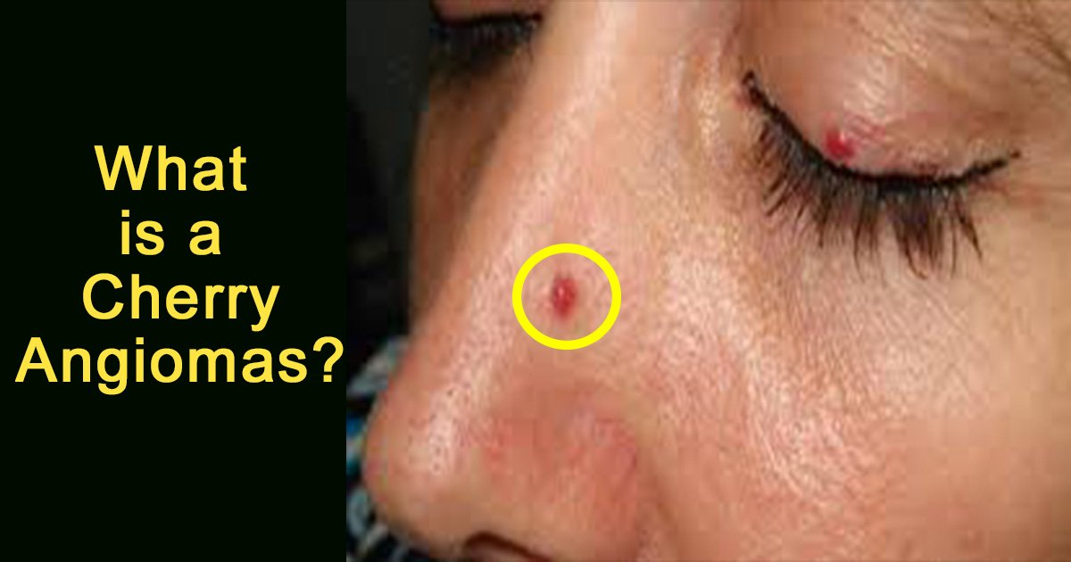 ec8db8eb84ac5 10.jpg?resize=412,232 - The Red Spots That May Cover Your Body Are Blood Vessels Called Cherry Angiomas