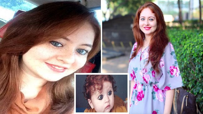 ec8db8eb84ac5 5 - Cette petite fille est si différente de sa famille qu'ils ont d'abord cru à une maladie!