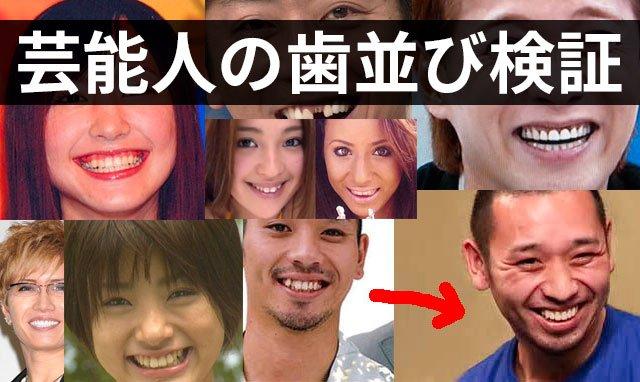 差し歯 芸能人에 대한 이미지 검색결과
