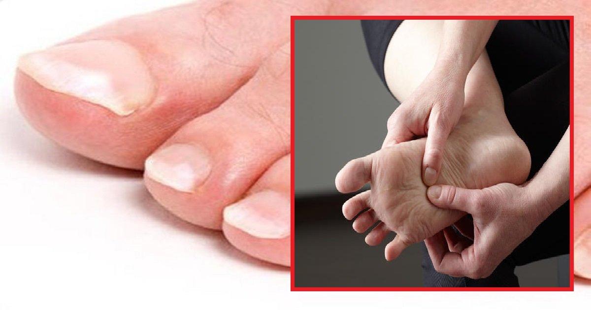 feet3 1 - 10 signes montrant que vos pieds essaient de dire quelque chose sur votre santé