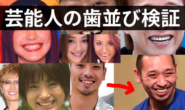 img 5a4cc8208199c.png?resize=1200,630 - 良くなった?悪くなった?差し歯の芸能人の評判