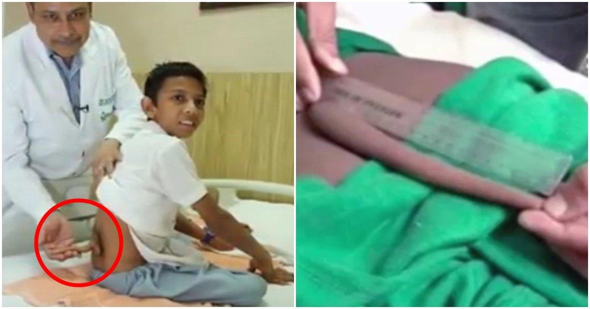 img 5a53047969c6a - 体から生えた20cmのしっぽを切り抜いたインド少年?