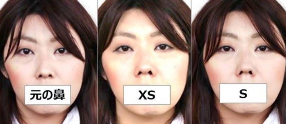 img 5a700f148c2a7 - 整形並みに変わるってホントくっきり鼻になれる「鼻プチ」の効果