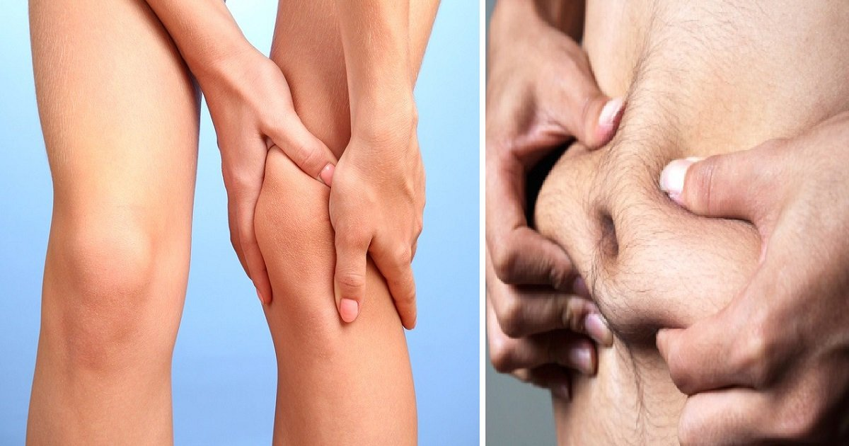 knee pain e1390003715197 - When Your Body Starts To Have These Symptoms, You May Have Vitamin D deficiency