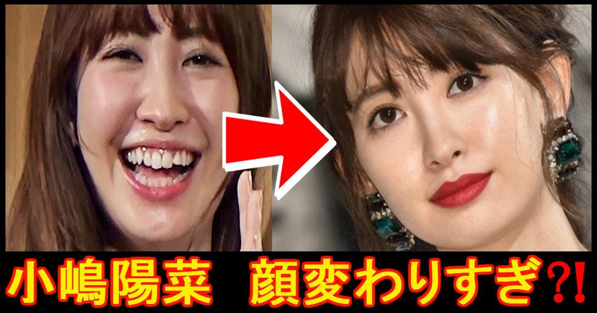 kojima ttl.jpg?resize=1200,630 - 『顔変わった!?』 元AKB48小嶋陽菜に整形疑惑!