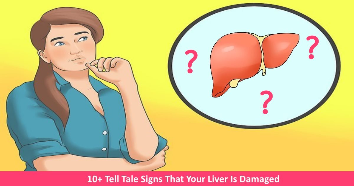 liverdamaged.jpg?resize=636,358 - 10+ Tell Tale Signs That Your Liver Is Damaged
