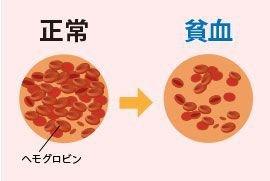貧血에 대한 이미지 검색결과