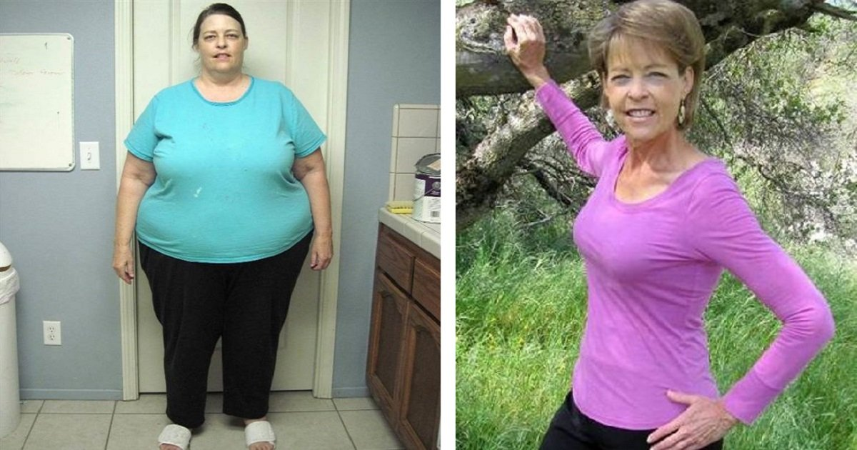 naylor2 1.jpg?resize=300,169 - Heard Enough Of How To Lose Weight? This Time, It Is From 63-Year-Old Woman Who Lost Over Half Of Her Weight