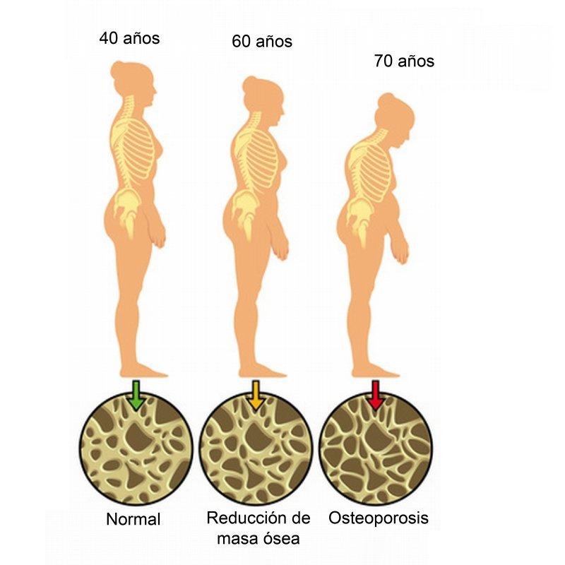 osteoporosis-en-blog-de-fitness-para-mujeres-con-recetas-fitness