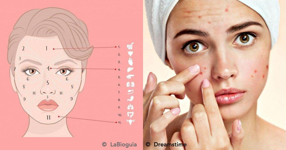 portada 11.jpg?resize=1200,630 - El lugar donde tienes acné, indica qué órgano está fallando
