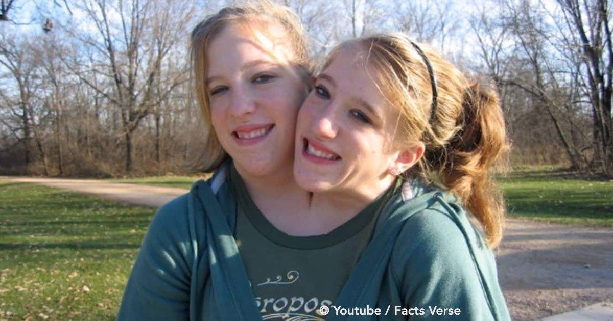 portada 15.jpg?resize=636,358 - Relembre esse caso inspirador: 21 anos depois, as gêmeas Abby e Brittany finalmente reaparecem na TV - e o tempo fez com que crescessem