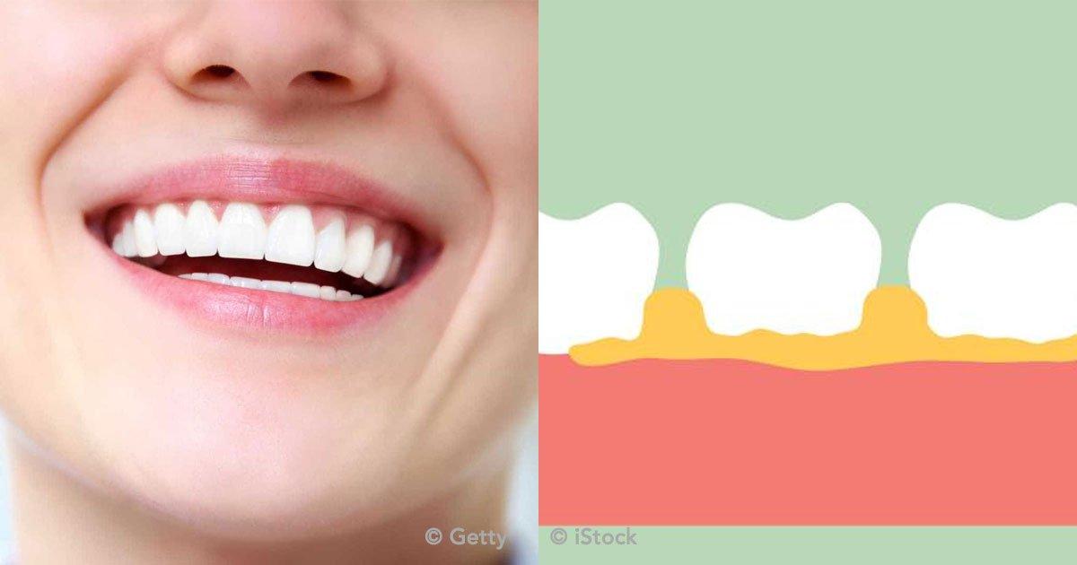 portada 18.jpg?resize=1200,630 - 2 remedios caseros para evitar la formación de sarro y tener una buena higiene bucal