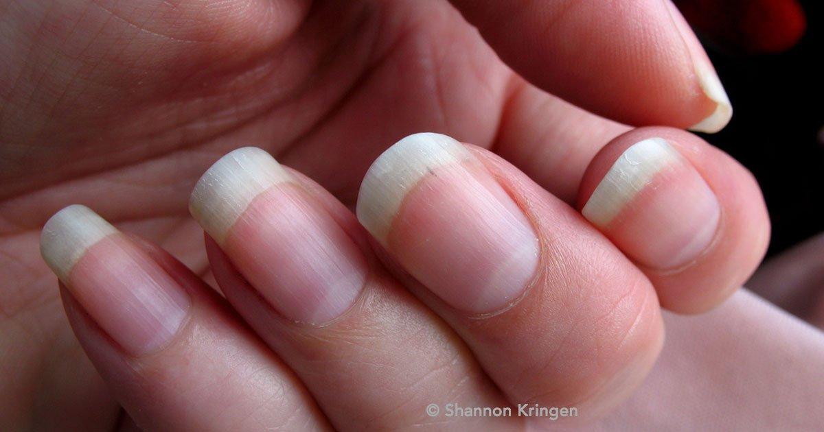 potta.jpg?resize=1200,630 - Descubre lo que significa la media luna en las uñas y qué refleja sobre tu salud