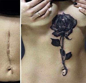 cicatrizes-tatuagem-encoberta-49-590b2a7232b03__605