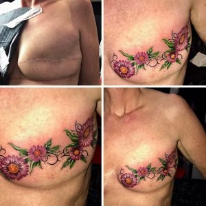cicatrizes-tatuagem-encoberta-92-590c312dba441__605