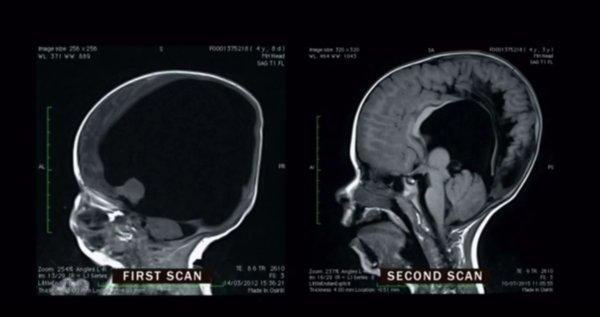 brainless baby brain scan에 대한 이미지 검색결과