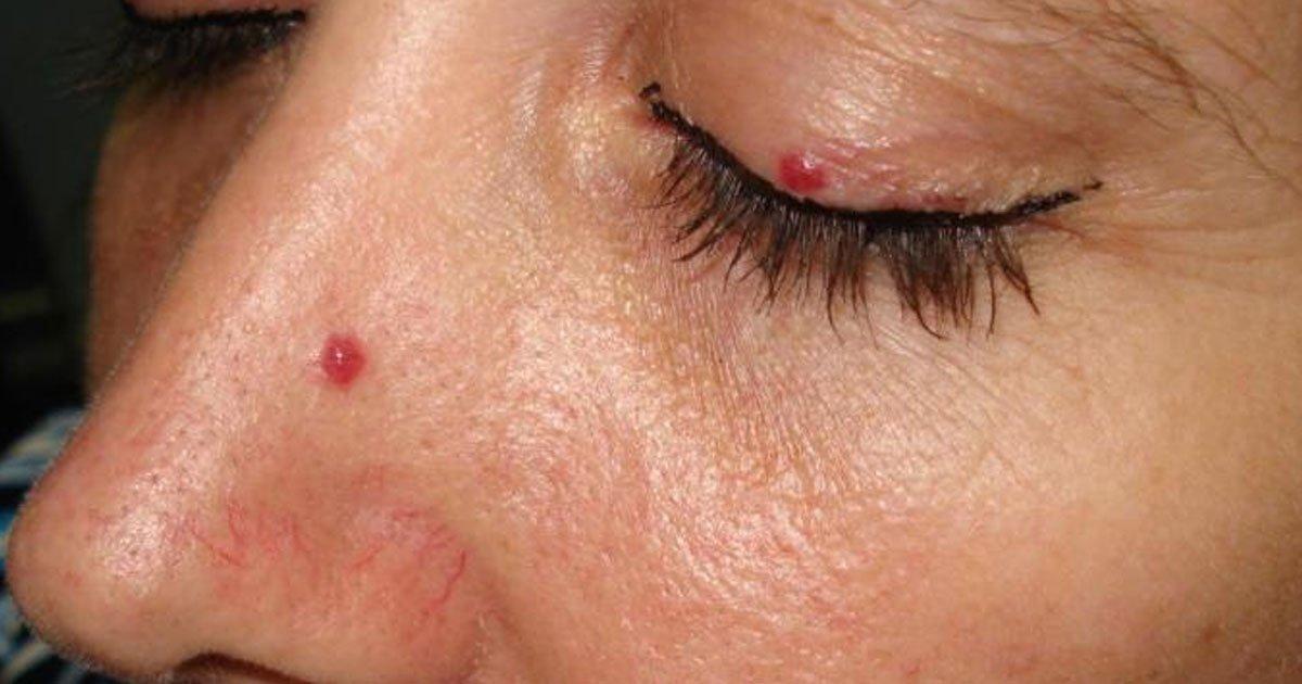 untitled 1.jpg?resize=300,169 - Los puntos rojos que pueden cubrir tu cuerpo se llaman angiomas de cereza, mira por qué nos salen