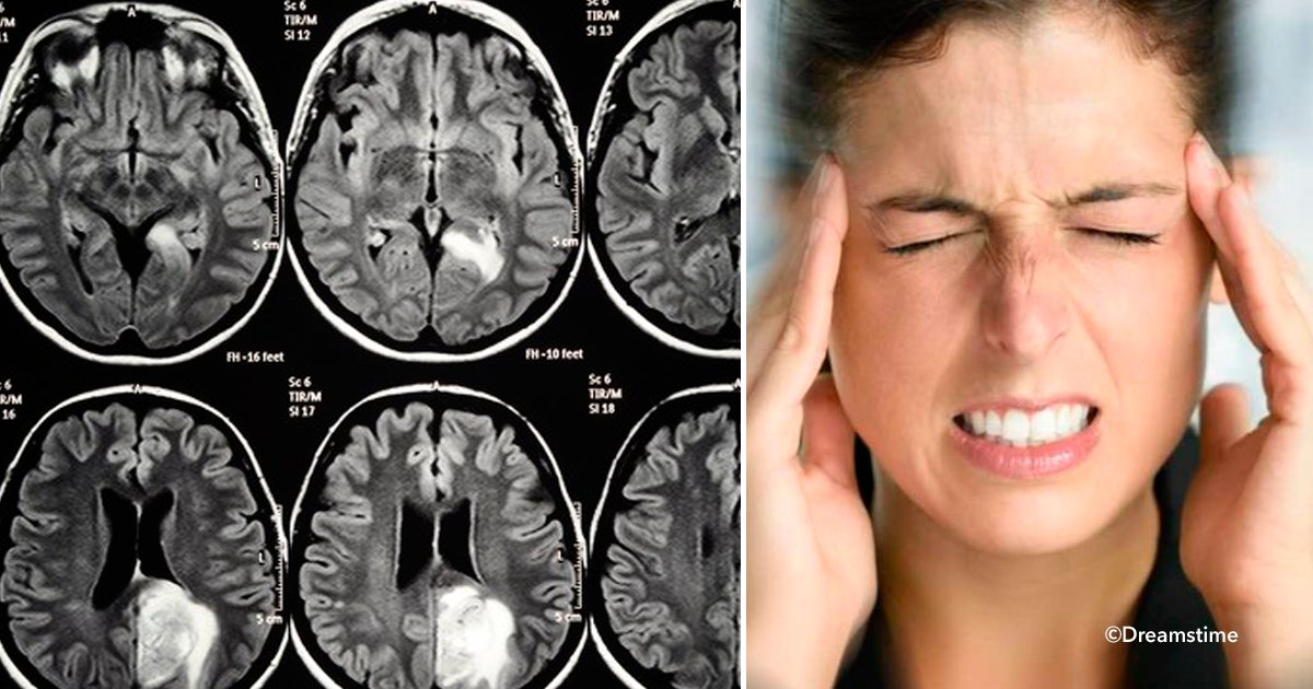 ver5.png?resize=636,358 - Tumor cerebral, 8 sintomas que alertam o corpo