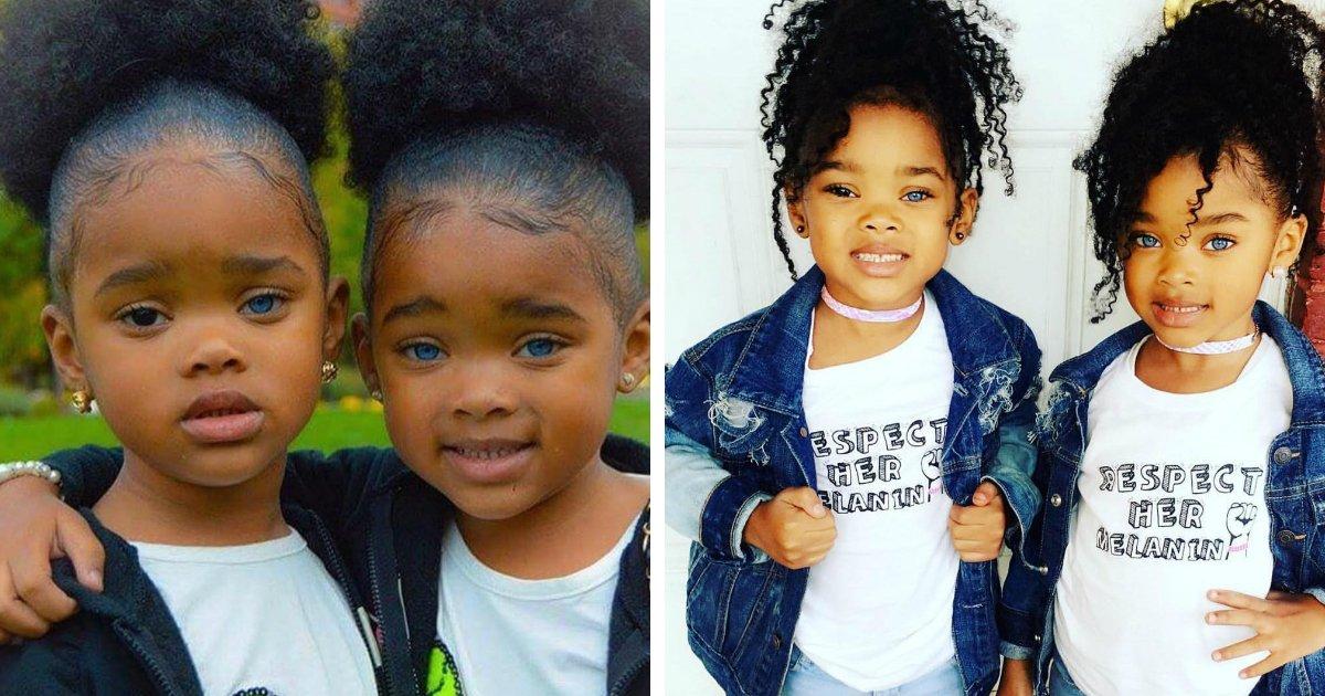 144.jpg?resize=648,365 - Estas gêmeas chocaram as redes sociais por sua beleza singular