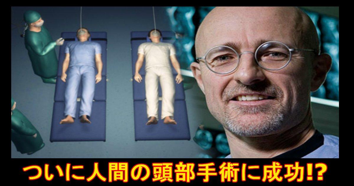 3 384.jpg?resize=1200,630 - 人間の頭部移植を成功!?これからは『頭』も取り換えられる!?