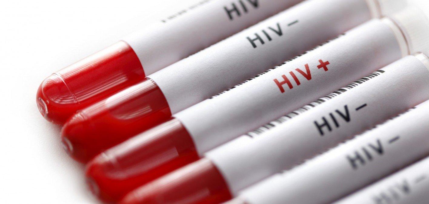 HIV에 대한 이미지 검색결과