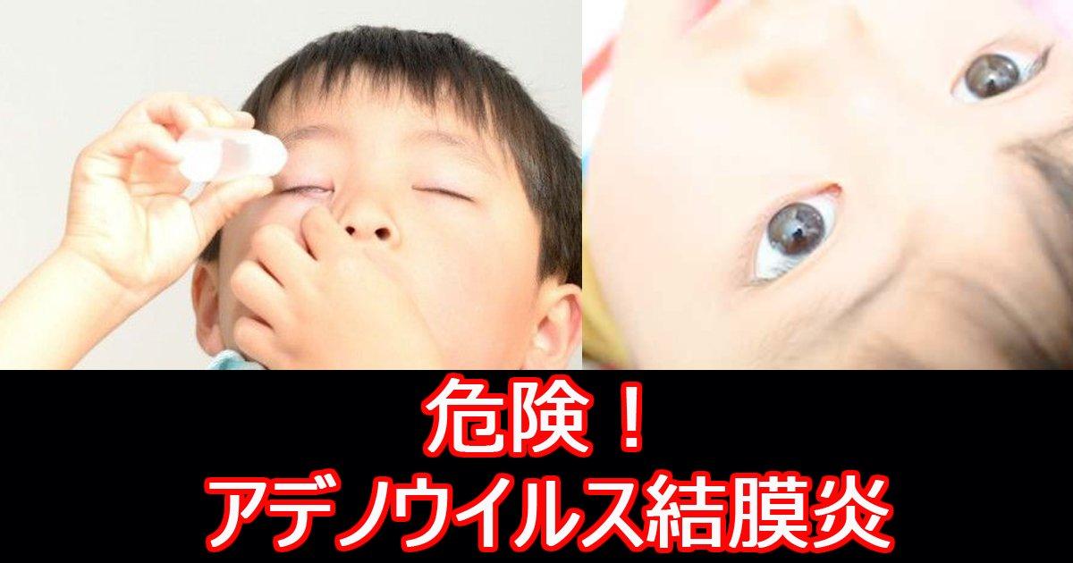 adenouirusu.jpg?resize=300,169 - 【お医者さんに聞いた】アデノウイルス感染で起きる結膜炎の症状・治療法とは