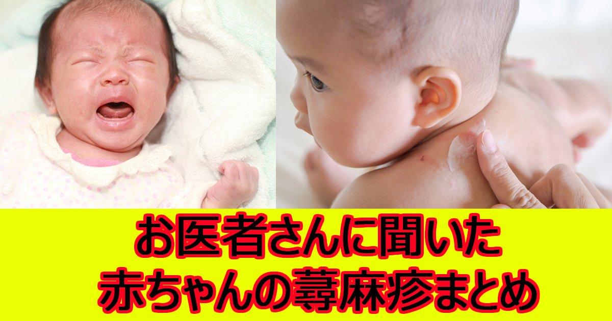 akatyyanzinmashin.jpg?resize=1200,630 - 【お医者さんに聞いた】赤ちゃんの蕁麻疹の原因と間違えやすい症状・対処法