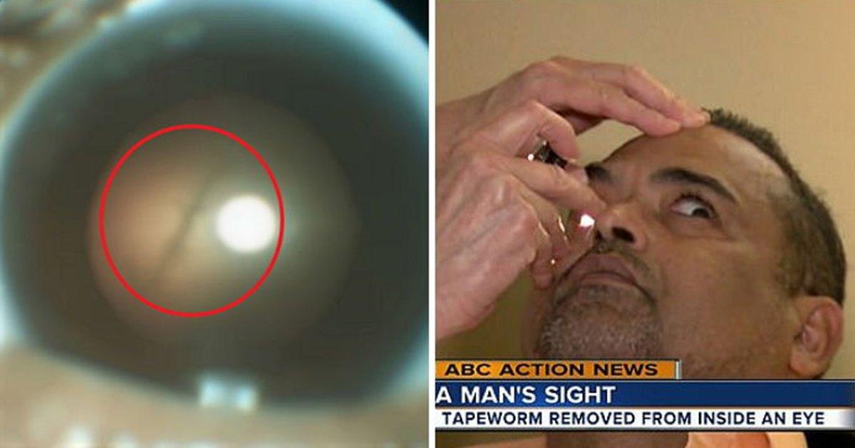 article thumbnail 84 - 햄 '덜 익혀' 먹다가 눈에서 '기생충' 발견된 남성