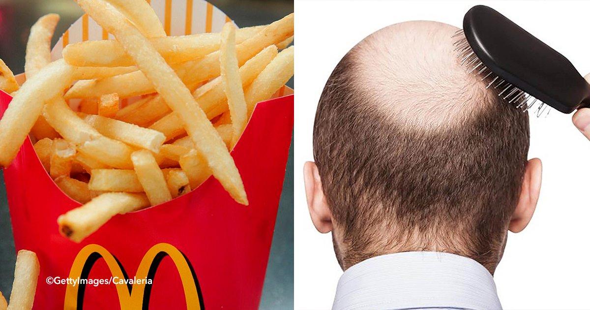cdscsdcds - Según un estudio, las papas fritas de McDonald's podrían curar la calvicie debido a una sustancia química.