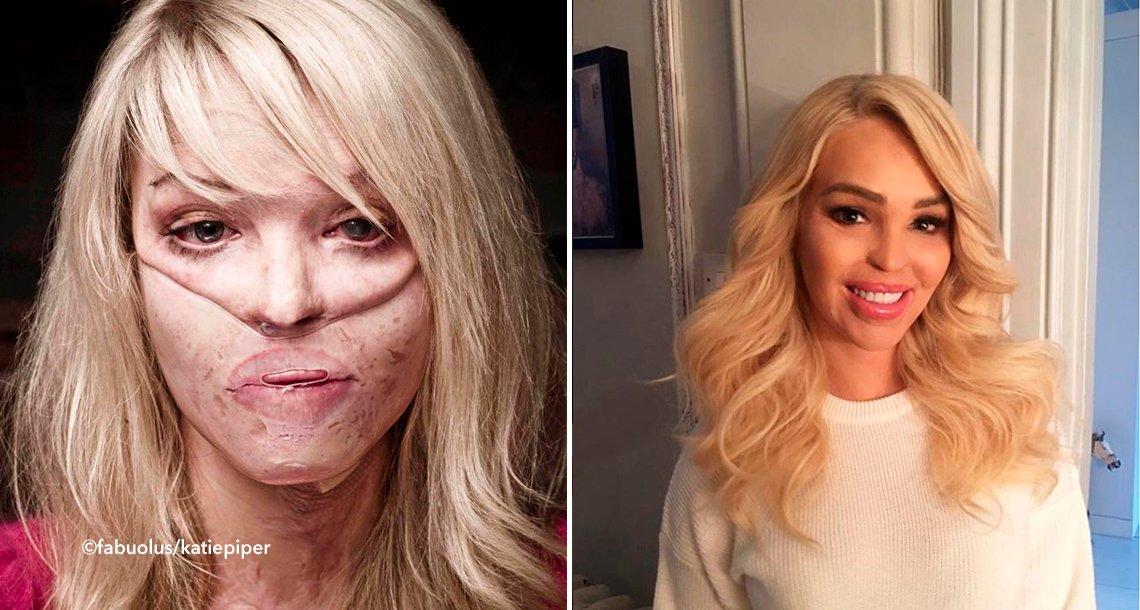 cover 4acid.png?resize=1200,630 - Un hombre le arroja ácido en la cara y ella no quería seguir viviendo, pero su madre le dio fuerza