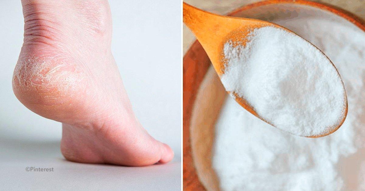 cover 4dfsd.png?resize=412,232 - ¿Sabias que el bicarbonato de sodio elimina grietas, callos y el mal olor de pies? ¡Descubre cómo!