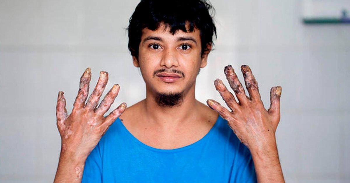 """cover22ll - """"El hombre árbol"""" a pesar de haberse sometido a 16 cirugías no logra erradicar las verrugas"""