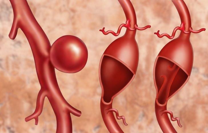descubre-las-senales-que-indican-un-posible-aneurisma-aortico-07-728x466