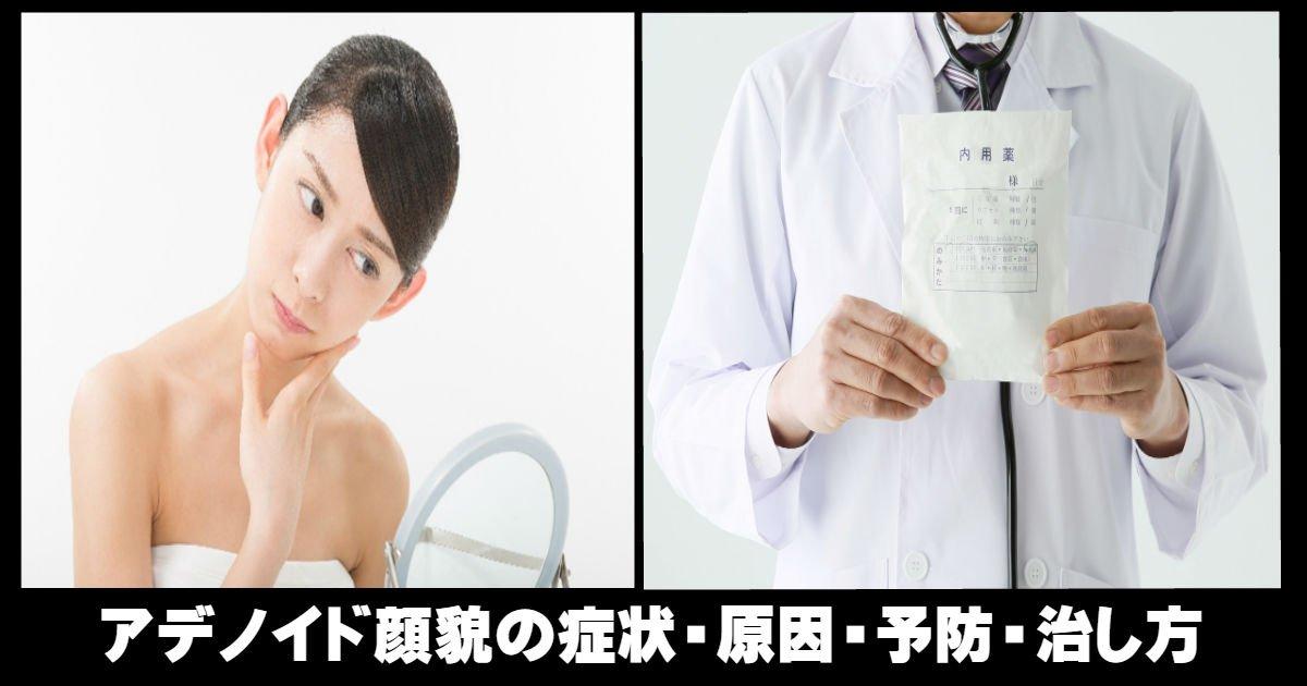 知らなかった!アデノイド顔貌の症状・予防・原因・治し方のご紹介!そもそもアデノイド顔貌とは?アデノイド顔貌になる原因アデノイド顔貌の特徴アデノイド顔貌はこんな症状があるアデノイド顔貌を予防方法は?では、アデノイド顔貌の治し方は?少しでも気になったら口呼吸から改善しようアデノイド顔貌の芸能人まとめ