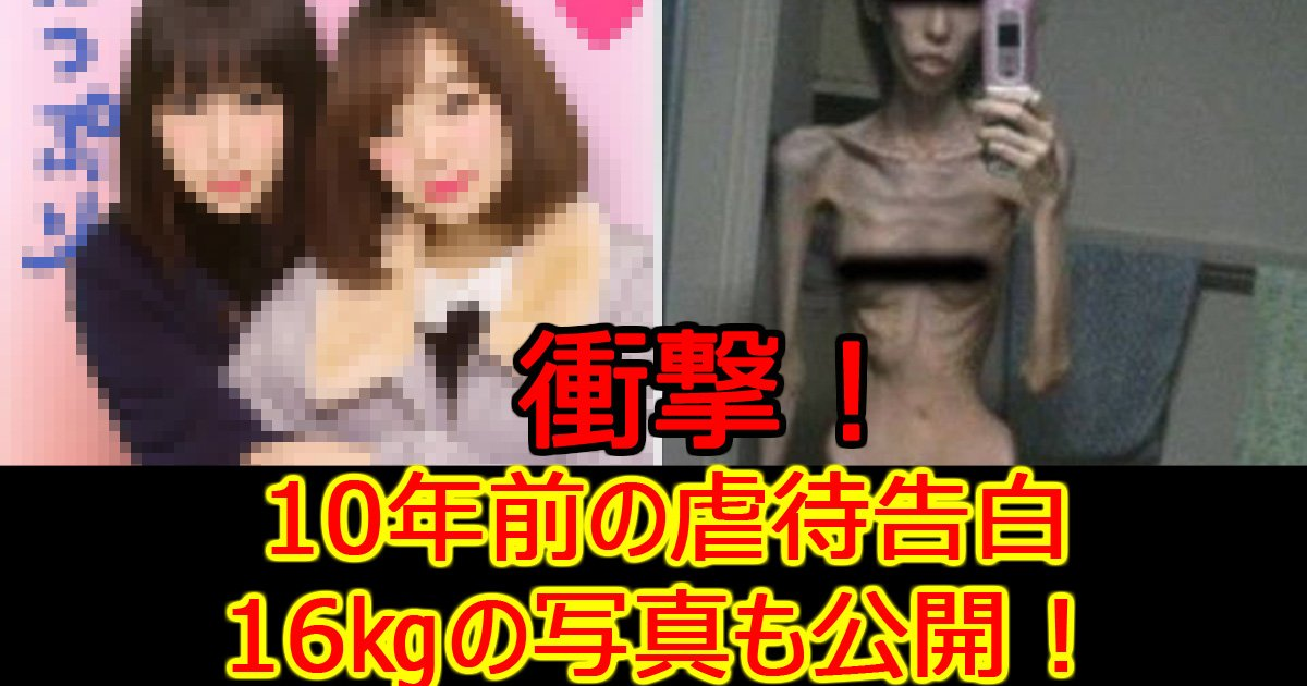 gyakutaisyouzyo.jpg?resize=648,365 - 虐待で16㎏だった少女…回復した現在の姿を公開