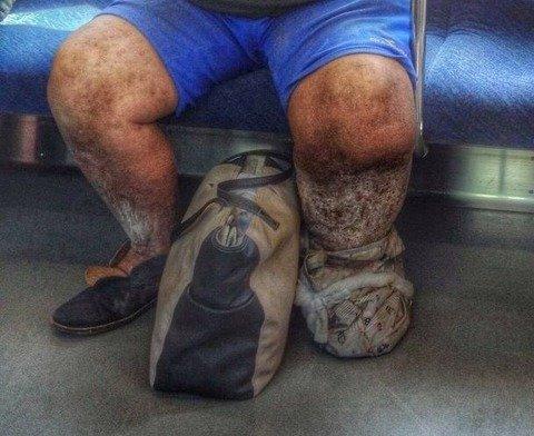 左足壊死ニキ 病気에 대한 이미지 검색결과