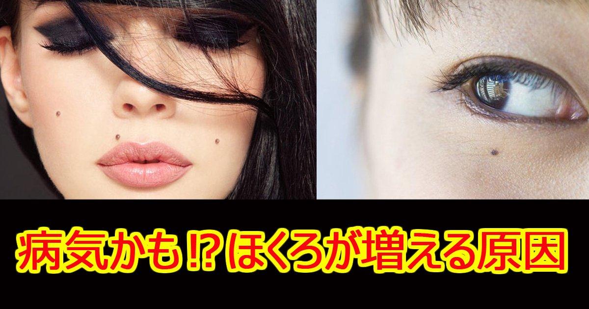 hokuro - 【医師監修】ほくろが増える原因とは~増えやすい人と病気の可能性~
