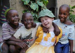 アルビノ アフリカの子供에 대한 이미지 검색결과