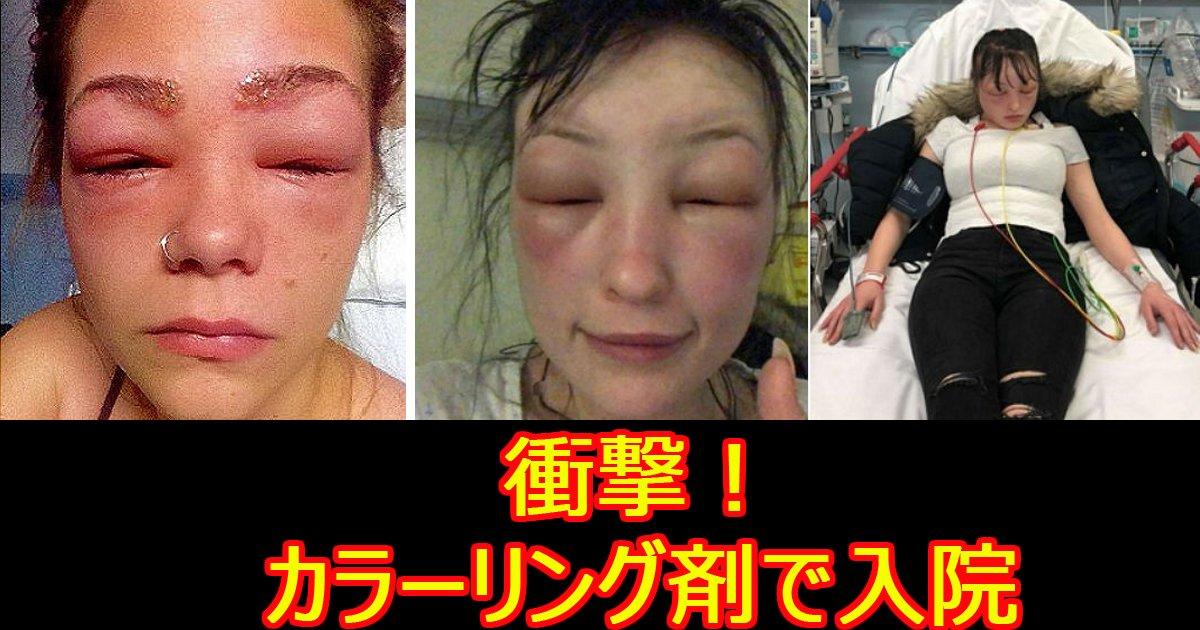 kararinnguzai.jpg?resize=648,365 - 家でヘア―カラーリングし、病院に運ばれた女性たち